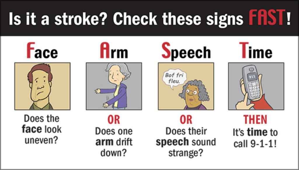 Is it a stroke